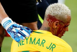 Il brutto infortunio di Neymar